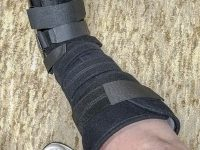 Igor, the medical boot, keeps the broken ankle stable.  Credit: Yvette Cardozo